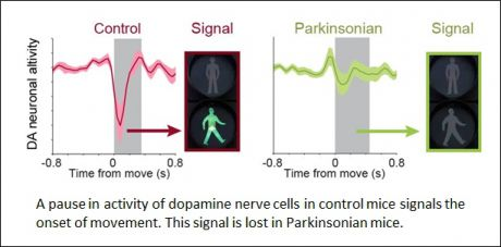Dopamine nerve cells pause to signal movement