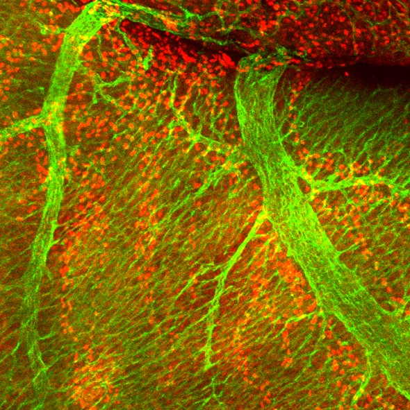Wholemount mouse heart at E16.5; coronary veins (green); lymphatics (red)